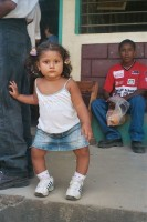 copil cu rahitism 133x200 Rahitismul cauze, forme, simptome, preventie si tratament