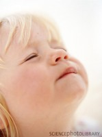 nasuc 149x200 Copilul la 1 an si 4 luni